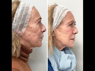 Rejuvenecimiento Full Face con ácido hialurónico