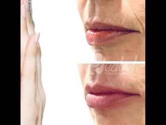 Aumento labios - 790190