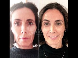 Rellenos faciales - Dra. Mariela Barroso - Clínica Reabel