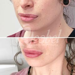 Aumento de labios - Dra. Mariela Barroso - Clínica Reabel