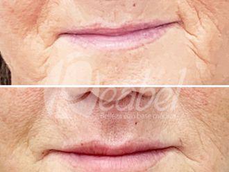 Aumento labios - 790197