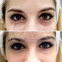 Eliminación de ojeras - Dra. Mariela Barroso - Clínica Reabel