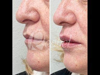 Aumento labios - 790199
