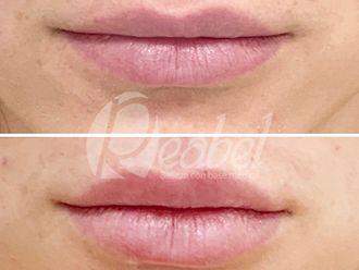 Aumento labios - 790202