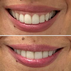 Sonrisa gingival - Dra. Mariela Barroso - Clínica Reabel