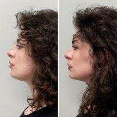 Aumento de mentón - Dra. Mariela Barroso - Clínica Reabel