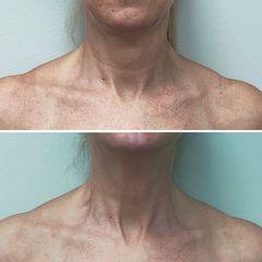Rejuvenecimiento de cuello - Dra. Mariela Barroso - Clínica Reabel