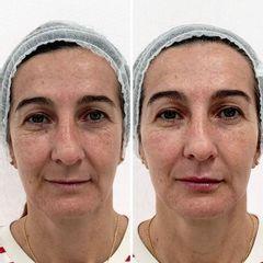 Full Face - Dra. Mariela Barroso - Clínica Reabel