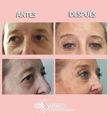 Antes y después Blefaroplastia - CosMédica