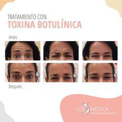 Bótox - CosMédica
