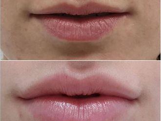 Aumento labios-737141