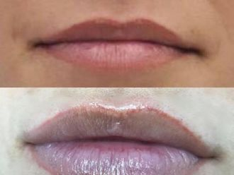 Aumento labios-737147