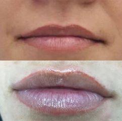 Antes y después Aumento de labios - CosMédica