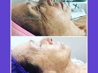 Eliminación arrugas-644927