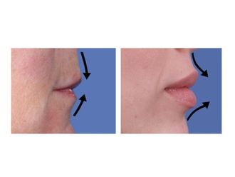 Aumento labios-485259