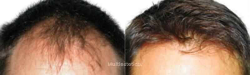 Antes y despues 2.jpg