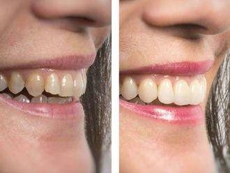 Odontología-646525