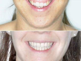 Cirugía maxilofacial - 647241