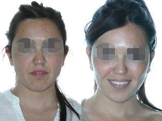 Rinoplastia y lifting facial