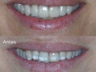 Blanqueamiento dental-738521