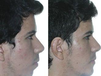 Cirugía maxilofacial - 738523
