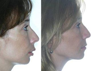 Cirugía maxilofacial - 738531