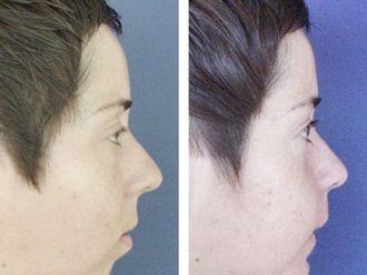 Cirugía maxilofacial-738534