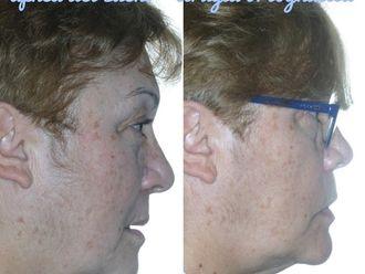 Cirugía maxilofacial-738536
