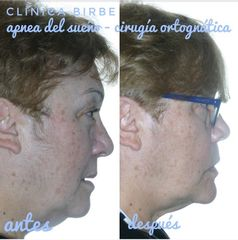 Antes y después Cirugía maxilofacial