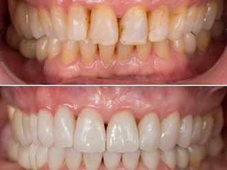 Blanqueamiento dental-738538
