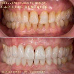 Blanqueamiento dental - Clínica Birbe