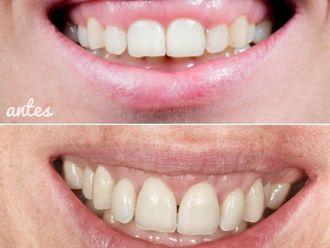 Ortodoncia-738539