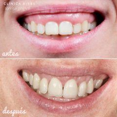Antes y después Ortodoncia