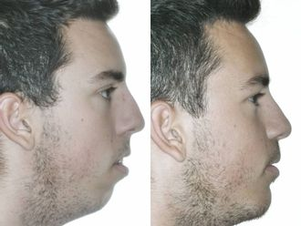 Cirugía maxilofacial - 738543