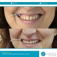 Corrección de sonrisa gingival con toxina botulínica (botox) | Dra. Sánchez de Gea - Solesio Clinic