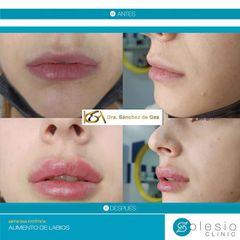 aumento de labios dra sanchez de gea solesio clinic