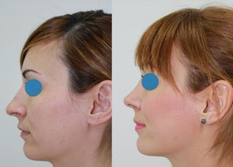 Antes y después Rinoplastia ambulatoria. Resultado al mes