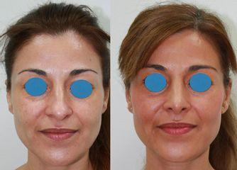 Antes y después Rinoplastia ambulatoria