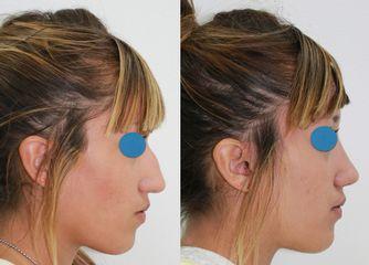 Antes y después Rinoplastia ambulatoria.