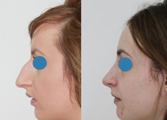 Antes y después Rinoplastia con anestesia local y sedación