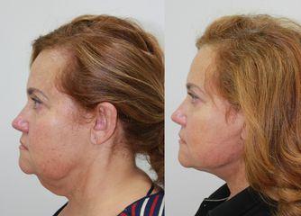 Antes y después Lifting de cuello con anestesia local y sedación