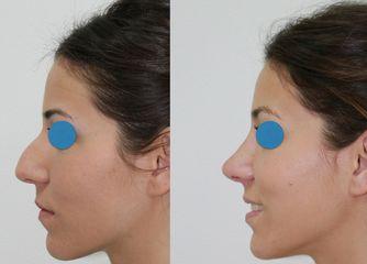 Antes y después Rinoplastia y otoplastia