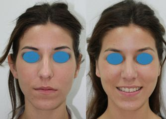 Antes y después Rinoplastia + otoplastia