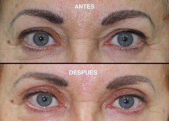 Antes y después Blefaroplastia superior