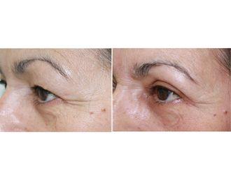 Cirugía estética-482387