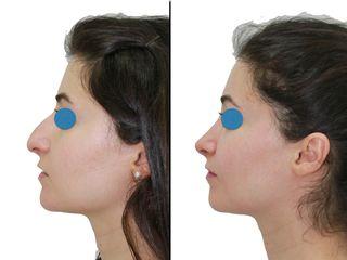 Antes y después rinoplastia cerrada