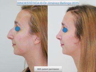 Antes y después Rinoplastia con técnica cerrada
