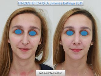 Rinoplastia-499050