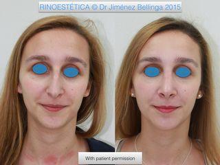 Antes y después Rinoplastia técnica cerrada. Frente