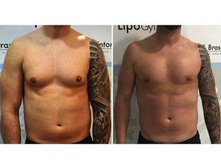 Antes y después Corrección ginecomastia con técnica lipogym 4D